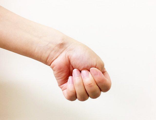 腱鞘炎の検査の写真